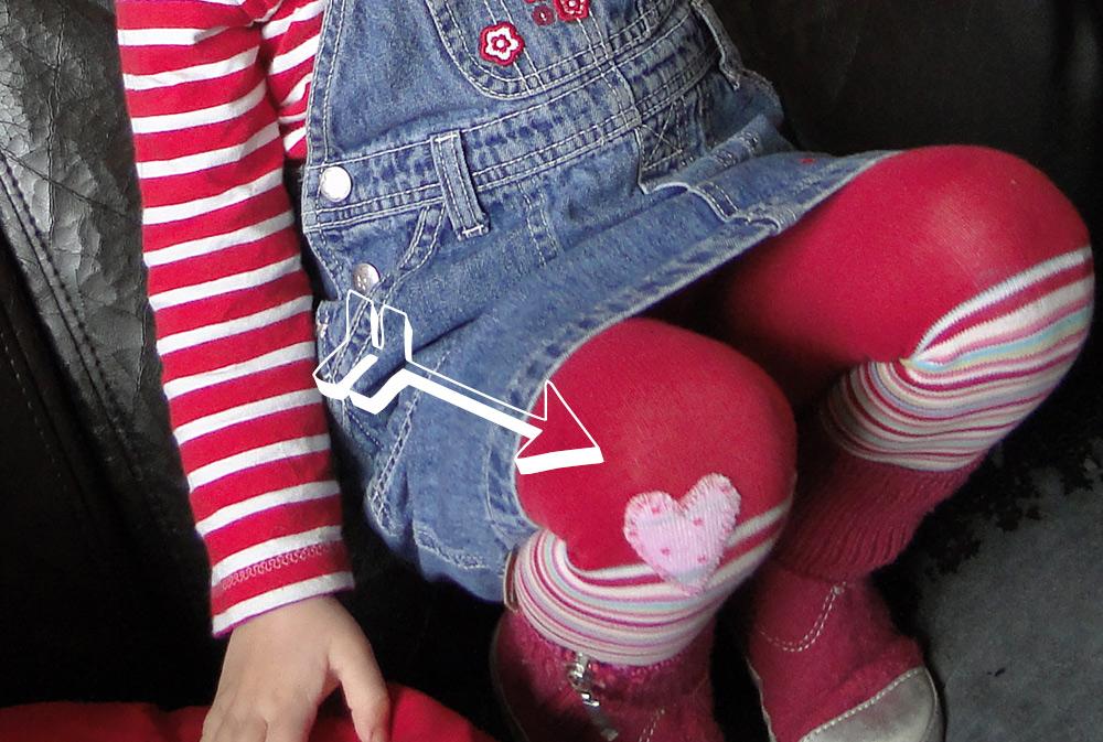 Loch in Kinder-Strumpfhose repariert mit Socke